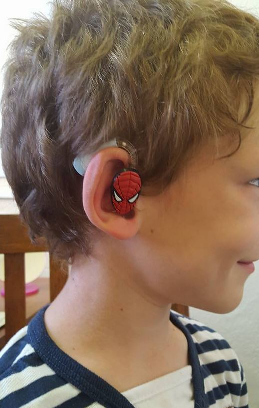 Mom of Hearing-Impaired Son Starts Custom Hearing Aid Business to Boost Deaf Kids' Confidence. Source and Credit: Lugs Website