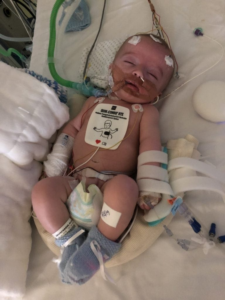 14-week-old baby wakes up after 5-day coma and smiles beautifully right at dad in magical moment