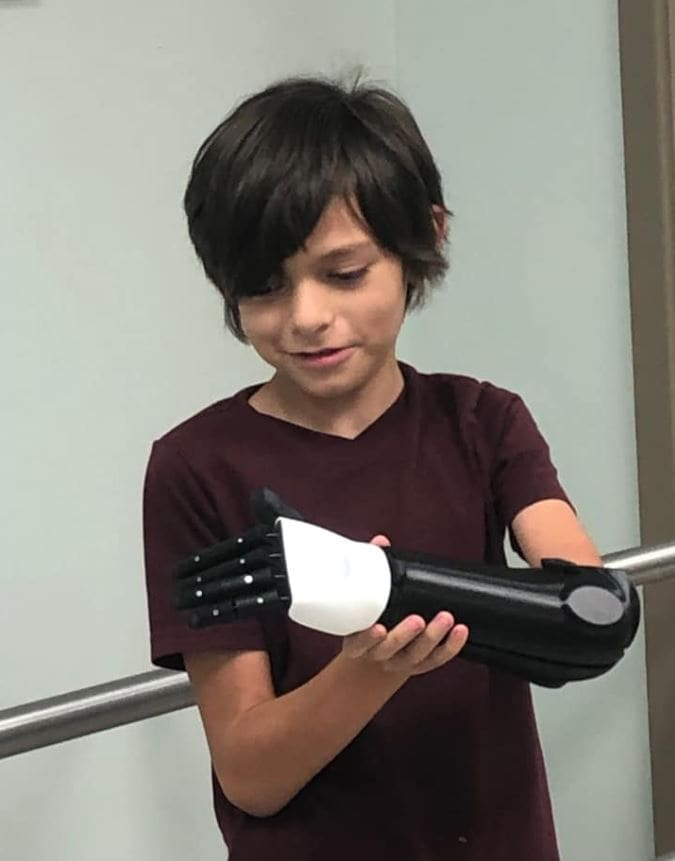Tired of feeling left out, incredible 10-year-old raises over $20k for revolutionary bionic arm.