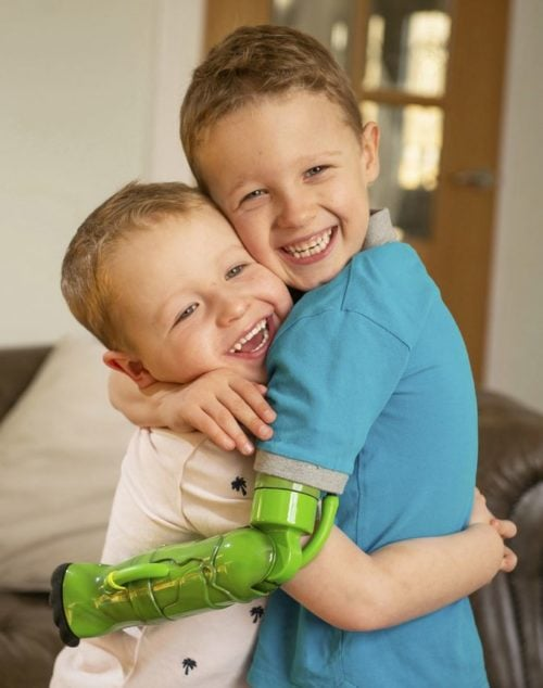 Boy missing limb gets Incredible Hulk themed arm so he can finally hug his little brother