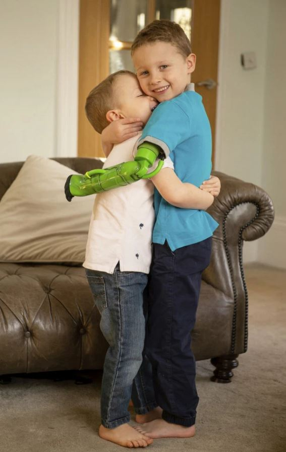 Boy missing limb gets Incredible Hulk themed arm so he can finally hug his little brother.