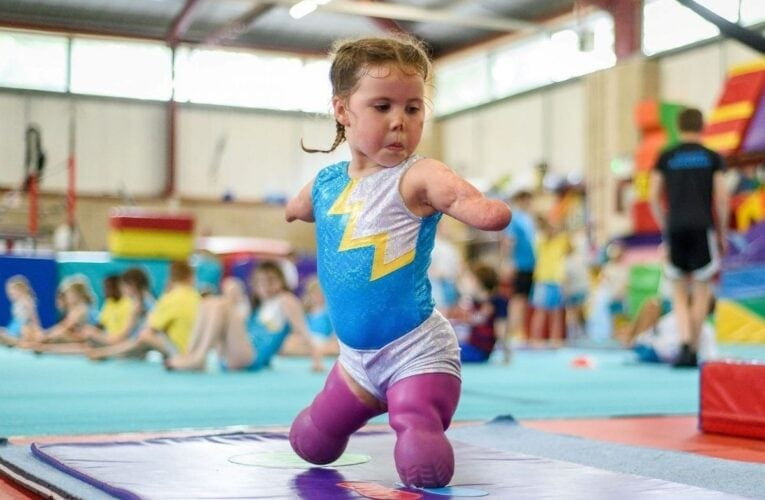 6-year-old girl, who lost her limbs to meningitis at 9-months-old, learns gymnastics
